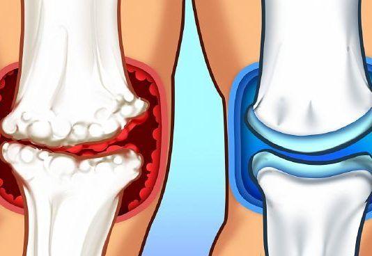 boka fájdalom ellen térdízület deformáló ízületi kezelése 2