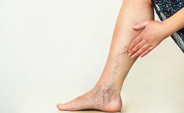 súlyos boka fájdalom ízületi reuma, ahol kezelni