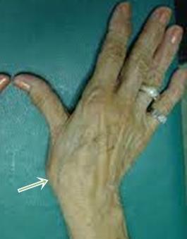 Emberi kéz anatómiája