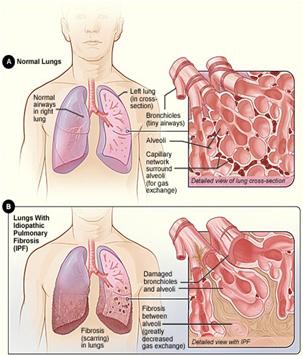 szisztémás kötőszöveti betegség tüdőkárosodással