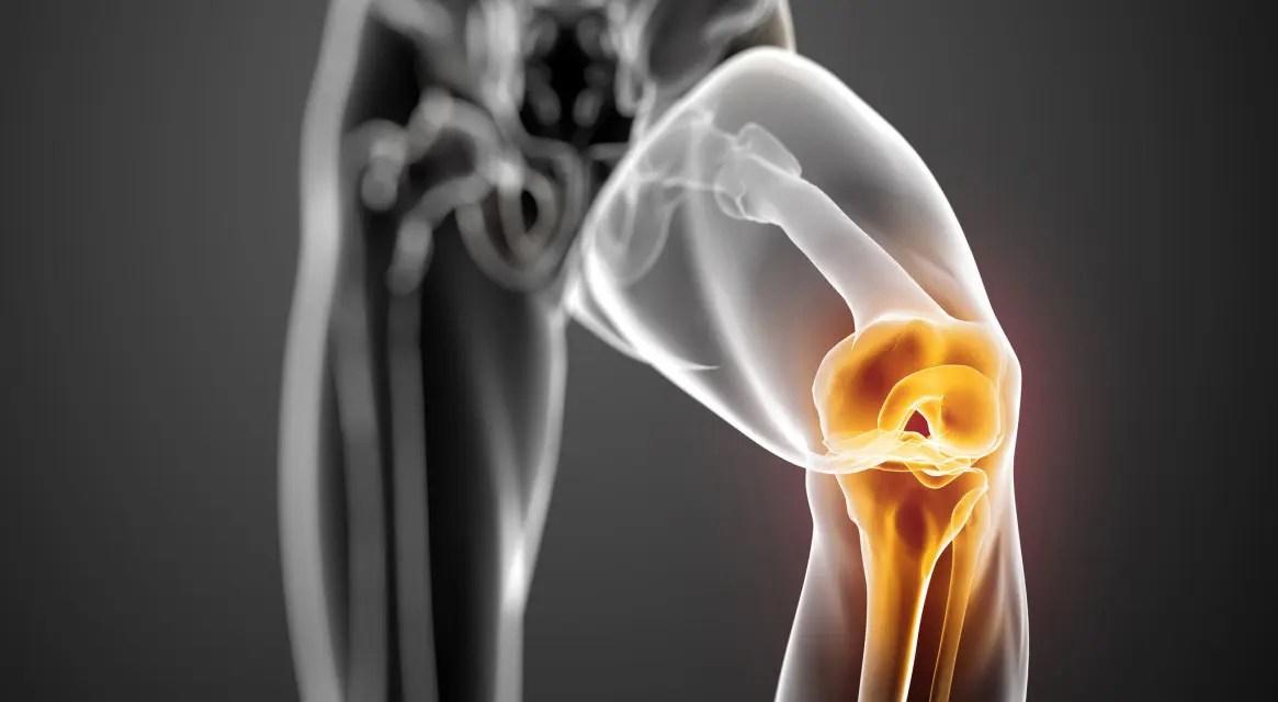 Térd elülső keresztszalagjának (LCA) sérülései – a fizioterapeuta válaszol