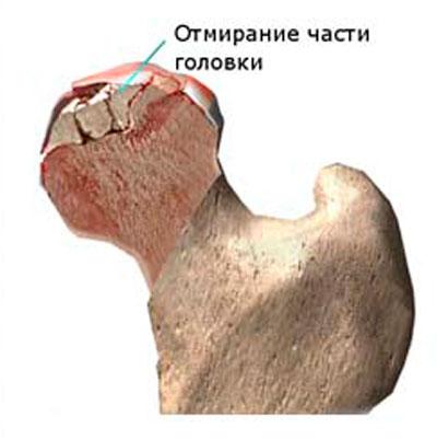 duzzanat és fájdalom a csuklóízületben