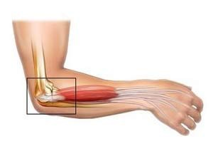 kenőcs az ízületekből sérülés után könyökízületek artrózisának kezelése