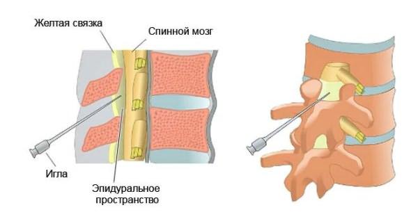 A nyaki osteochondrosis gyógyszeres kezelése - Rehabilitáció