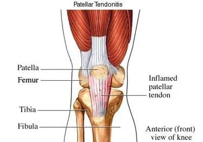 fájdalom a lábak ízületeiben, hogyan lehet enyhíteni erős boka és térd fájdalom