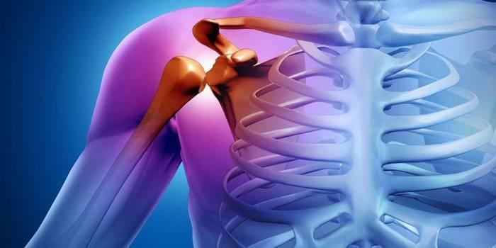 jobb váll izületi fájdalom ujjízületi tünetek és otthoni kezelés