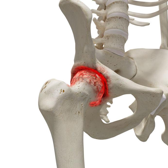 a csípőízület 2. fokozatának coxarthrosis kezelése