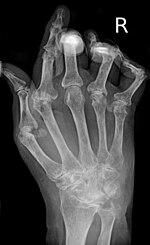 a kéz interfalangeális ízületi gyulladása sacroiliac ízületi ízületi kezelés