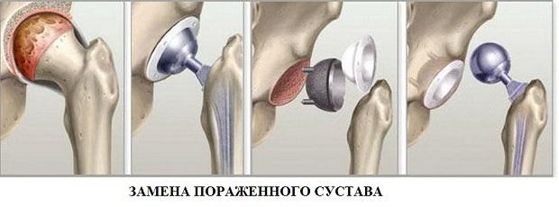 pilates ízületi fájdalom a térdízület nem tart