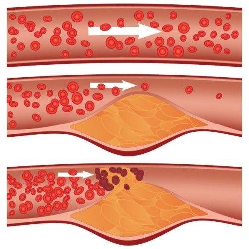 a lábízület ízületi tünetei és kezelése fájdalom a boka felett és felett