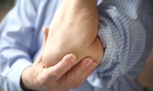 térdízületi gyulladás, mint kenet duzzanat és fájdalom a térdízületekben