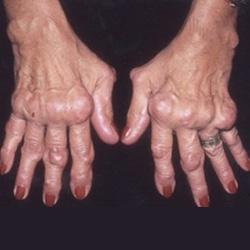 gyermekkori reumás izületi gyulladás térdízület kenőcsbursitis