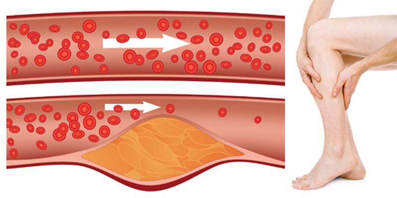 gyógyszerek az alsó végtagok artrózisának kezelésére