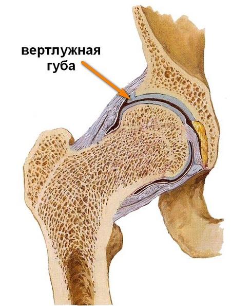 hatékony gyógyszerek a csípőízület artrózisához mit kezelnek, ha fájnak az ízületek