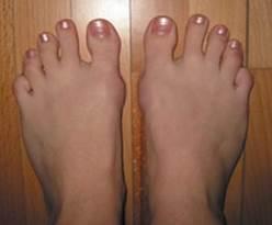 hogyan kezeljük a nagy lábujj artritiszét