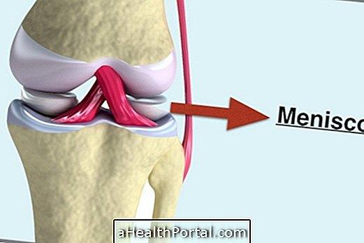 hogyan kezeljük a térdízületeket és hogyan kezeljük fájdalom a bal vállízületben és a gerincben
