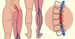 Idegsértés a csípőízületben: tünetek, kezelés, visszaesés kizárása