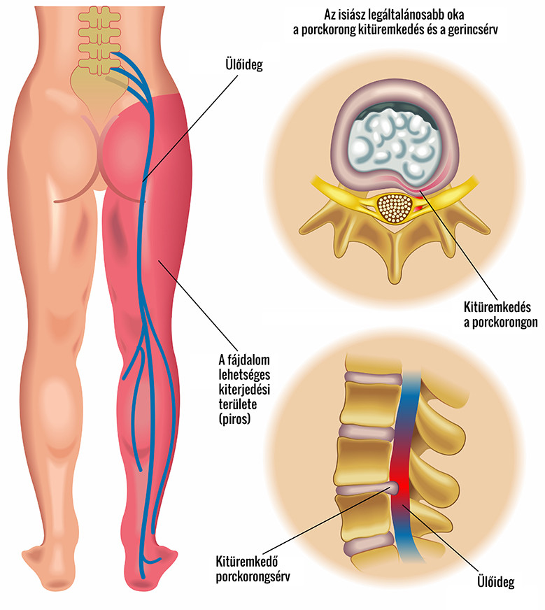 hogyan kezeljük a csípőízület coxarthrosisát 3 fokkal fájó csontok az ízületekben