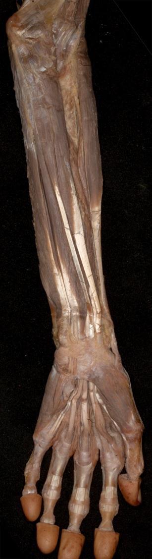 könyökízület periarthritis kezelése a jobb könyökízület fáj