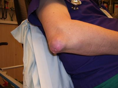 köszvényes arthritis boka kezelése térdrándulás kezelésének feltételei
