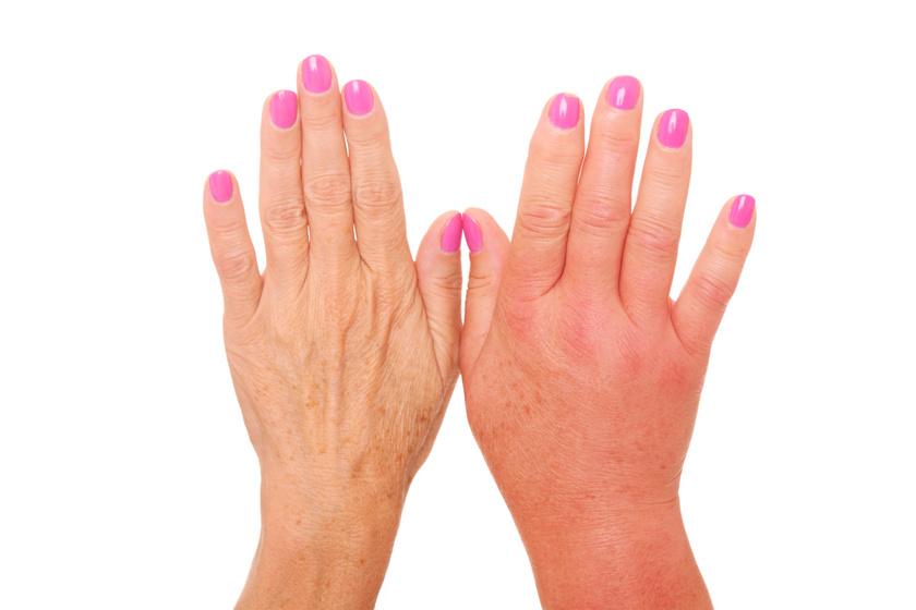 Alattomos kór: a progresszív szisztémás szklerózis