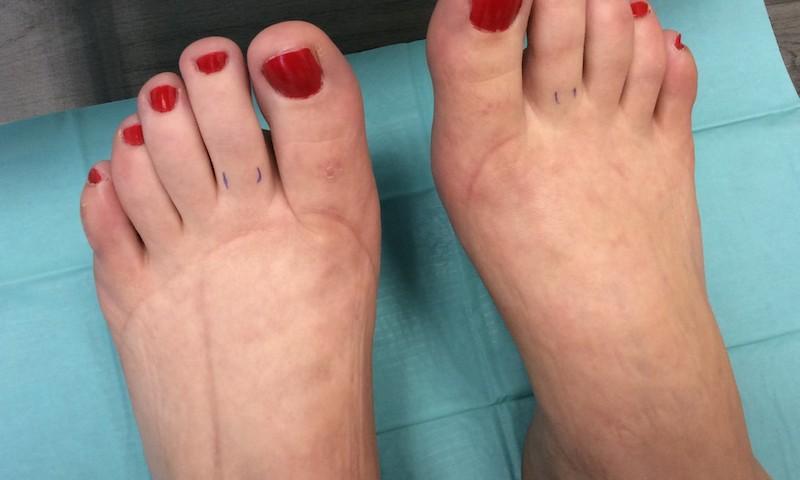 miért fáj az ujjak ízületei a kezelés