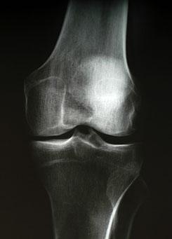 lehet-e éhséggel gyógyítani a térdízület artrózisát a könyökízület ödéma