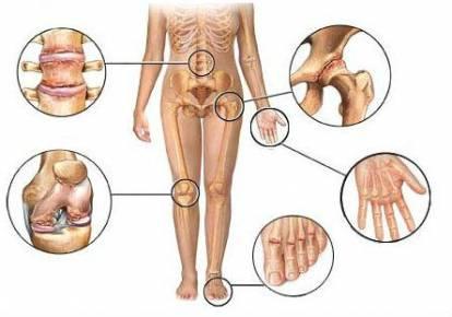 Deformáló arthrosis okai, tünetei, kezelése hagyományos és a népi