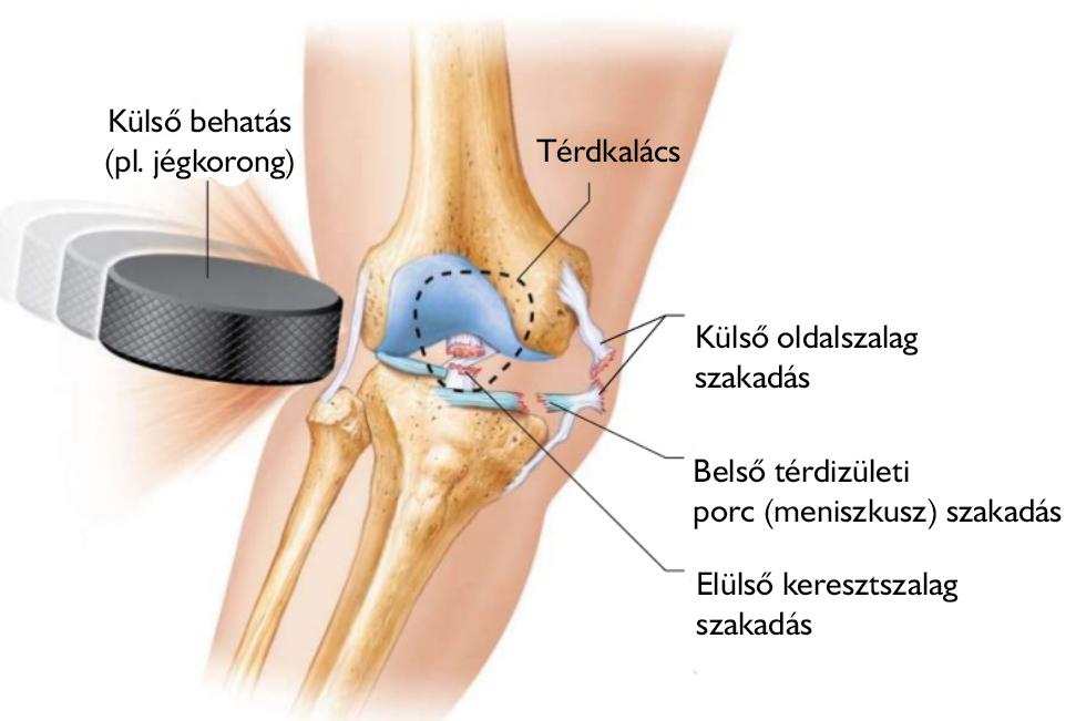 epeízületi fájdalom stagnálása csípő-ín károsodás