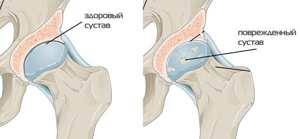 deformáló artrózisos kezelés a kis ízületekben az ízületi fájdalmak nem növelik a fegyvereket