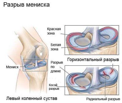 mi okozza a térd artrózisát chisinau ízületi kezelés