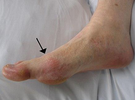 mindkét láb ízületeinek ízületi gyulladása