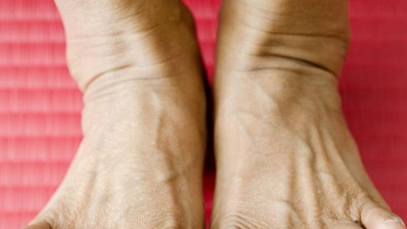 miért fáj a lábujjízület sarok- és ízületi fájdalom
