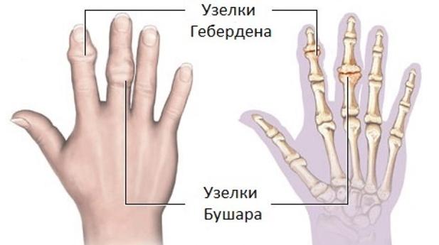 növekedések az ujjak ízületein