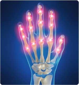 Káposzta levele artritiszre
