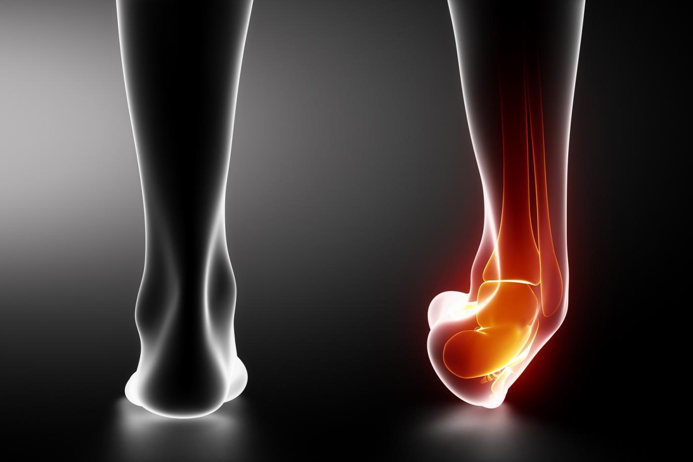sportos boka sérülések