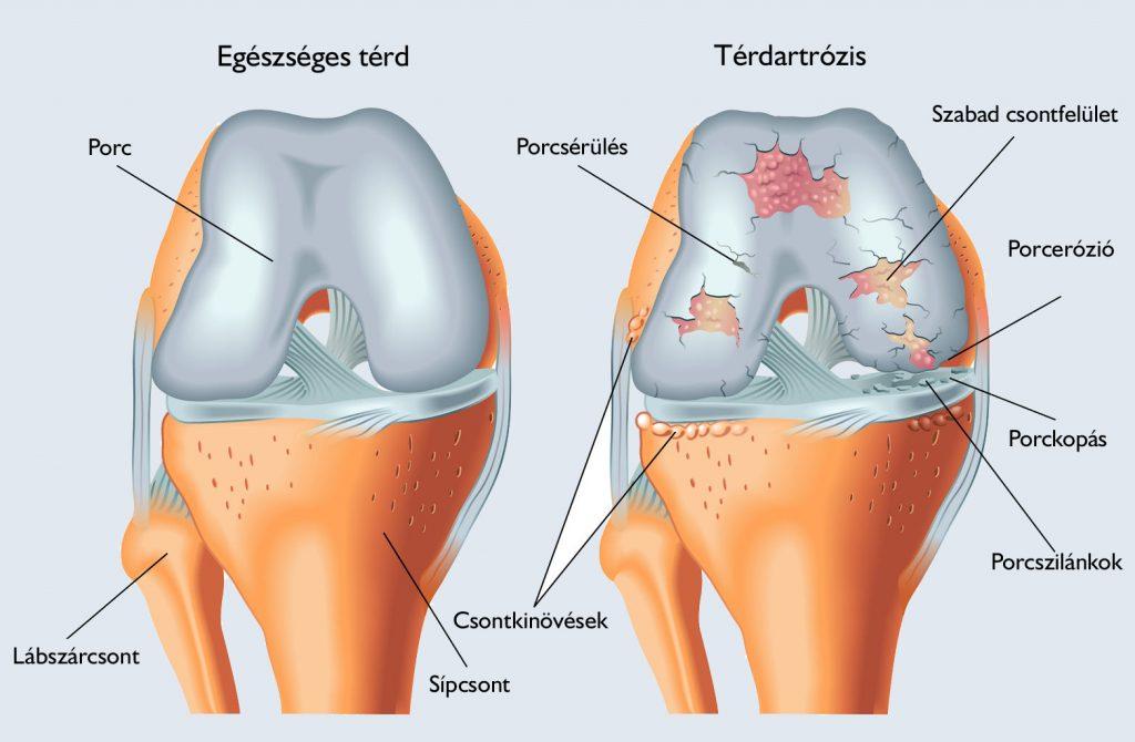 a jobb boka ízület posztraumás artrózisa méreg glükózamin-kondroitin