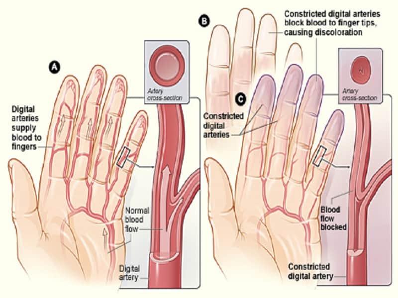 térd artralgia serdülők kezelésében