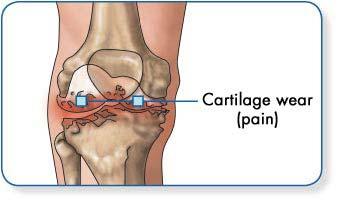 Kondroprotektorok artroszis kezelésére - Csontritkulás July