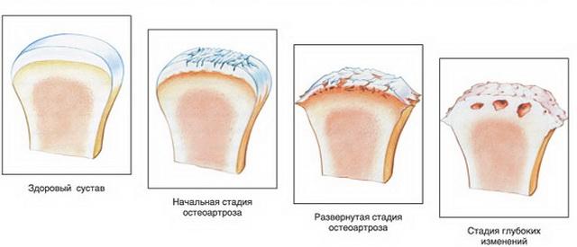 a boka tünetei ízületi kezelés az ízületi gyulladásról
