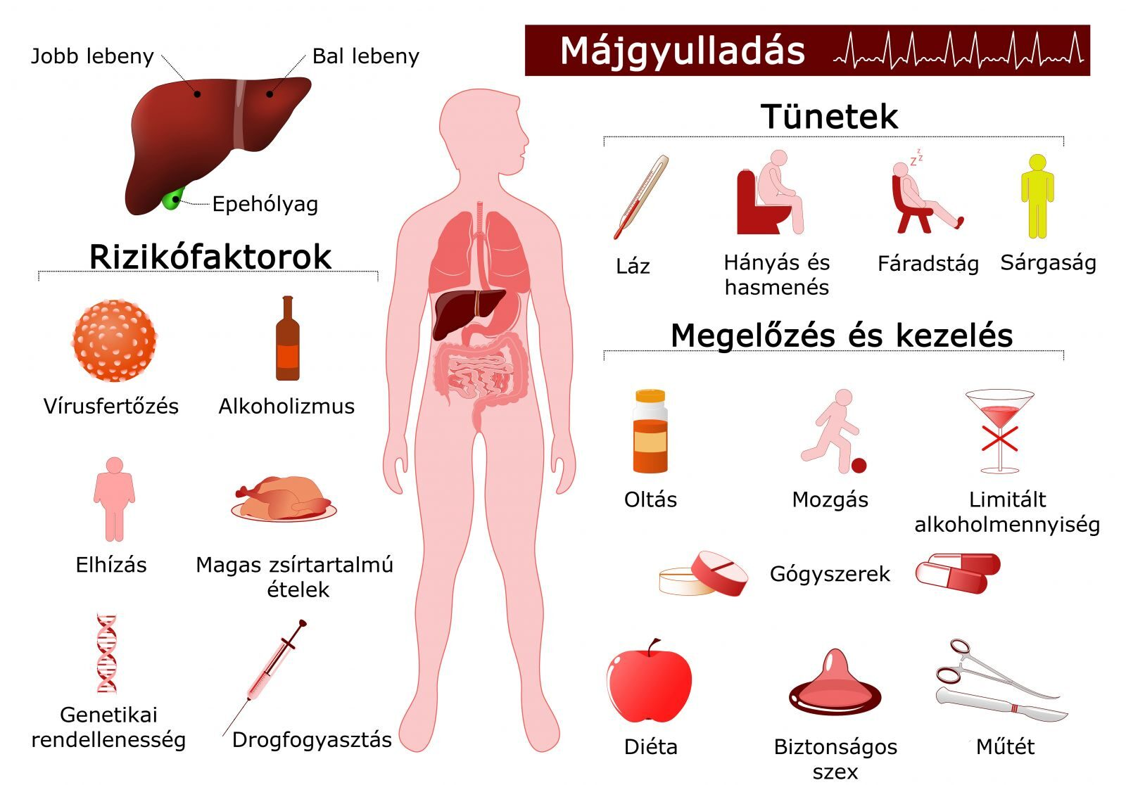 Májbetegségek tünete, kezelése | panevino.hu