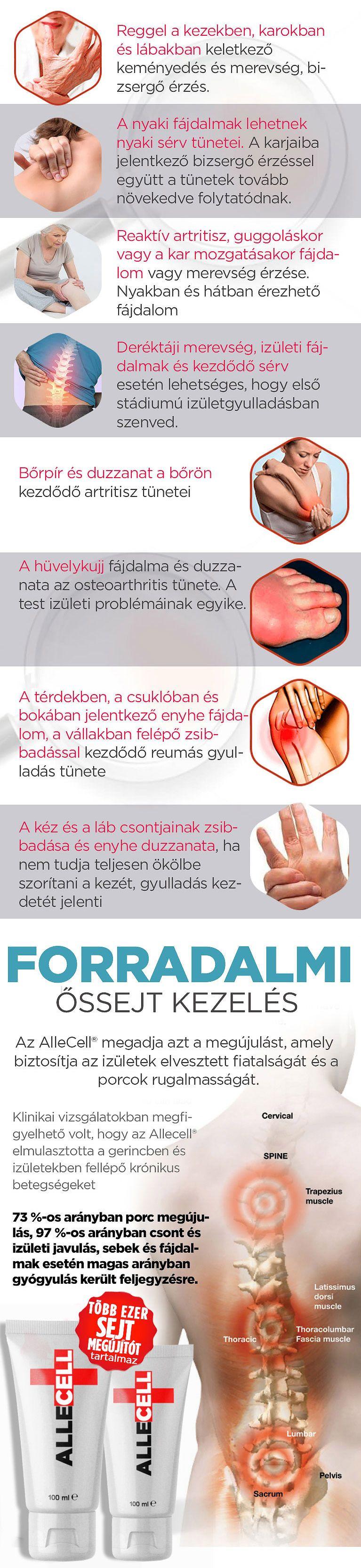 ízületi láb gyógyul valerian tinktúra ízületi fájdalmak kezelésére