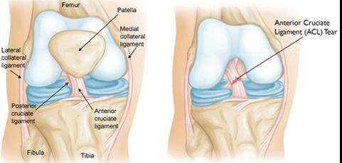 térdízület ligamentum kezelése