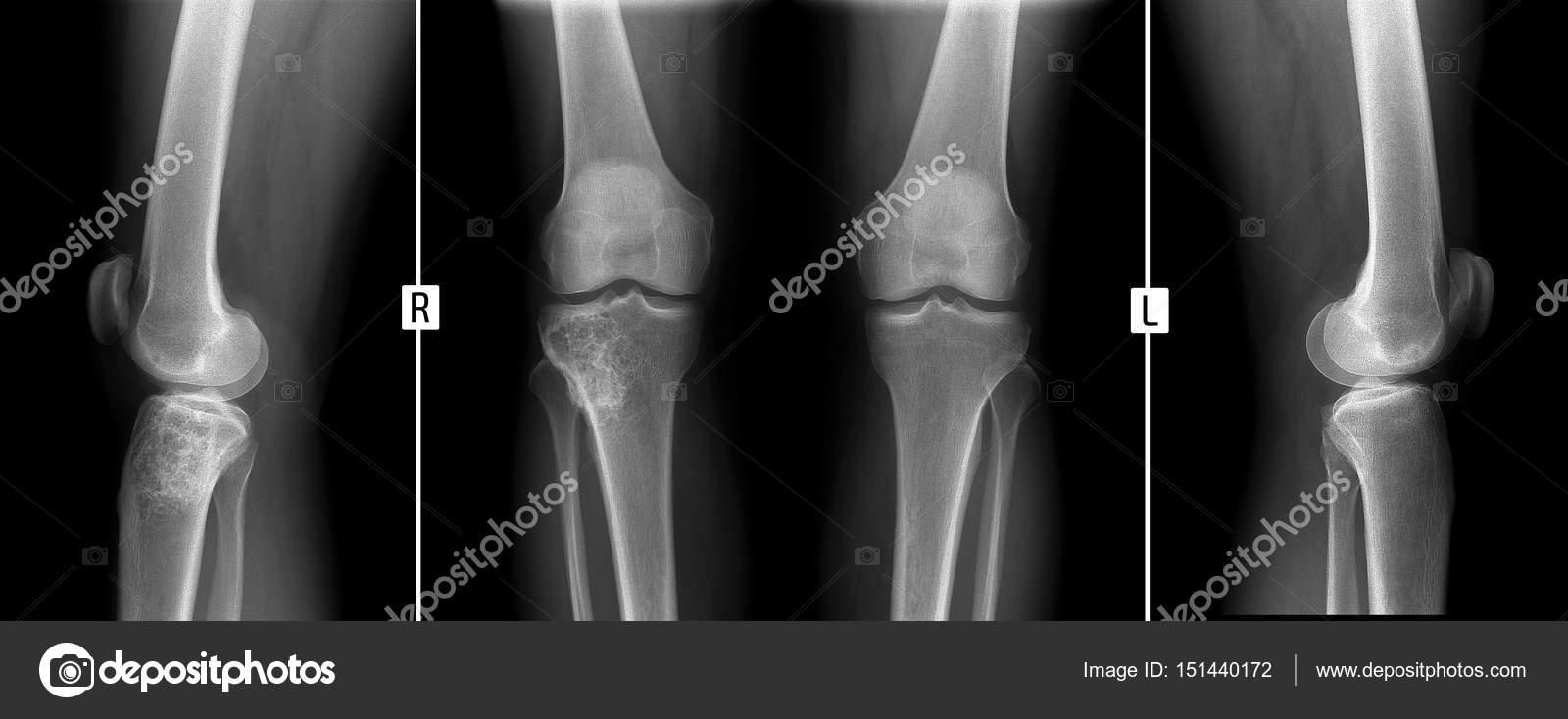 kezeljük a csuklóízület fájdalmát chisinau ízületi kezelés