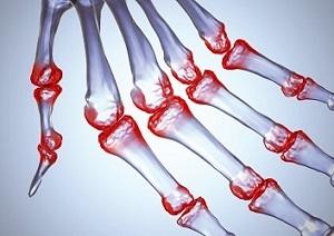 a kéz artritiszének prognózisa fű-ízületekről ízületi gyulladás esetén