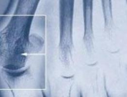 az íves ízületek artrózisa mi ez