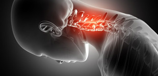 hogyan lehet kezelni a csigolya csontritkulást
