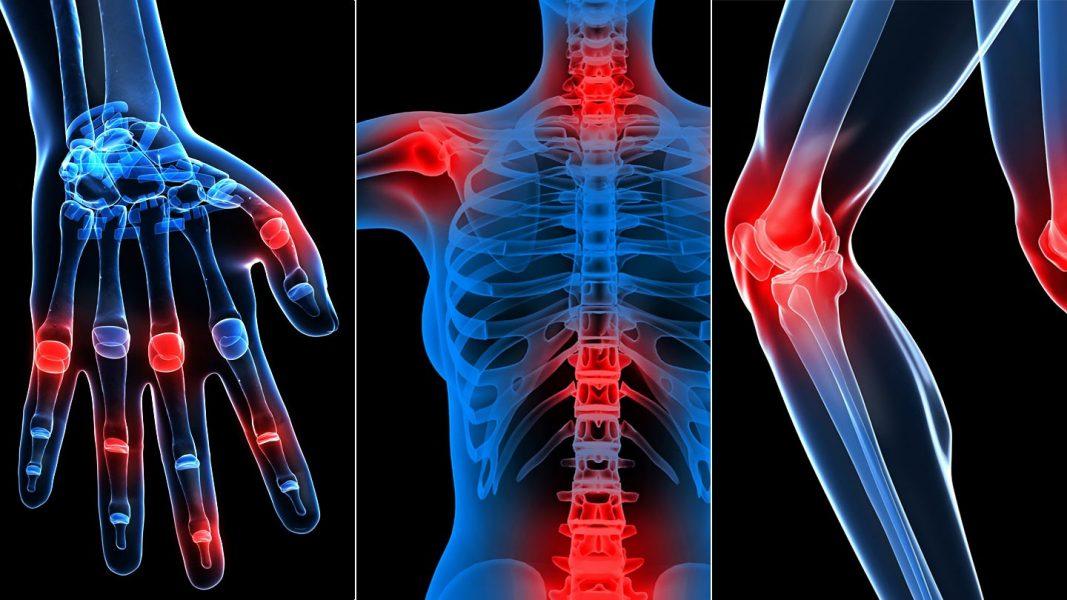 hogyan lehet meghatározni, hogy fáj-e egy ízület varrás fájdalmak minden ízületben