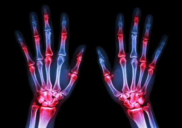 fájó fájdalom az ujj ízületében