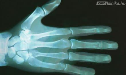 az ujjak ízületeinek fájdalmától izületi gyulladás könyök